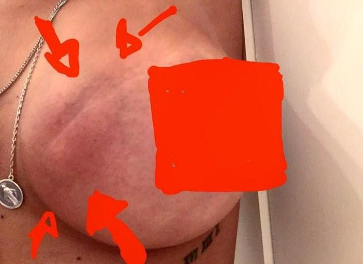 Sofia Ribeiro partilhou foto de quando descobriu um caroço na mama